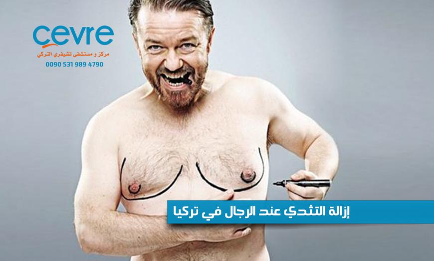 إزالة التثدي عند الرجال