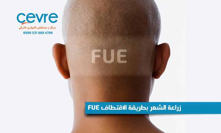 زراعة الشعر بطريقة الاقتطاف FUE