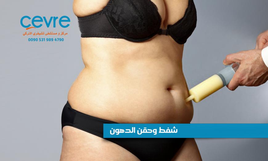 شفط وحقن الدهون