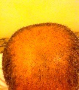 تجربة زراعة الشعر في تركيا10