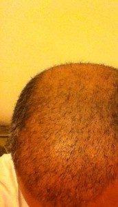 تجربة زراعة الشعر في تركيا11
