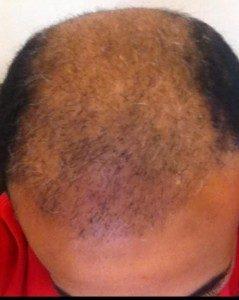 تجربة زراعة الشعر في تركيا12