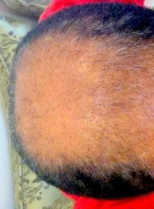 تجربة زراعة الشعر في تركيا13