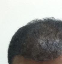 تجربة زراعة الشعر في تركيا15