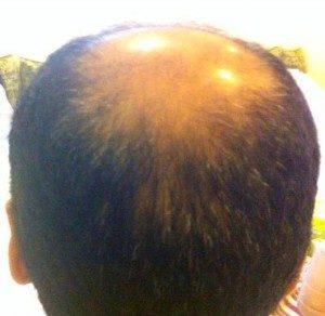 تجربة زراعة الشعر في تركيا2