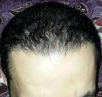 تجربة زراعة الشعر في تركيا27
