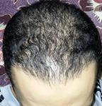 تجربة زراعة الشعر في تركيا28