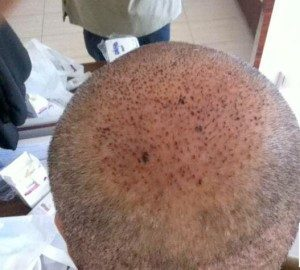 تجربة زراعة الشعر في تركيا5