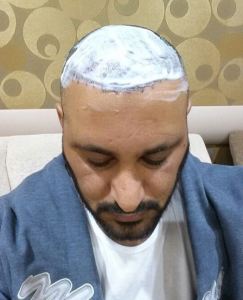 تجربة زراعة الشعر في تركيا7