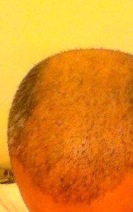 تجربة زراعة الشعر في تركيا9