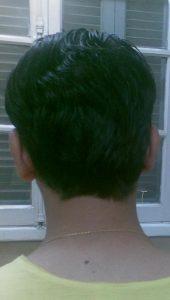 تجربة زراعة شعر في تركيا 1