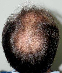 تجربة زراعة شعر في تركيا1