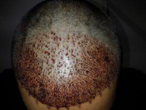 تجربة زراعة شعر في تركيا13