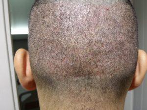 تجربة زراعة شعر في تركيا16