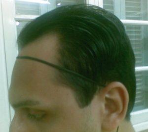 تجربة زراعة شعر في تركيا2