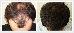 تجربة زراعة شعر في تركيا26