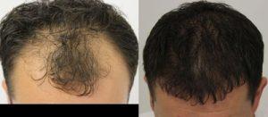تجربة زراعة شعر في تركيا28