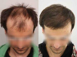 تجربة زراعة شعر في تركيا29