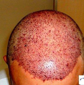 تجربة زراعة شعر في تركيا3