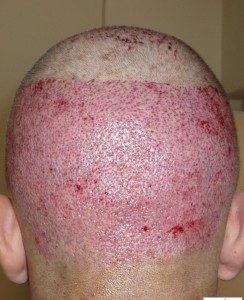 تجربة زراعة شعر في تركيا4