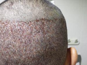 تجربة زراعة شعر في تركيا42