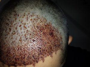 تجربة زراعة شعر في تركيا46