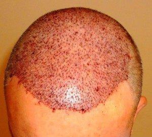 تجربة زراعة شعر في تركيا5