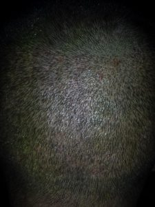 تجربة زراعة شعر في تركيا50