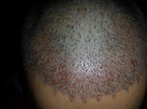 تجربة زراعة شعر في تركيا51