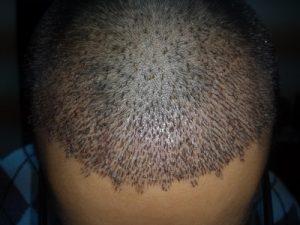 تجربة زراعة شعر في تركيا52