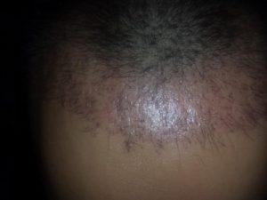تجربة زراعة شعر في تركيا53