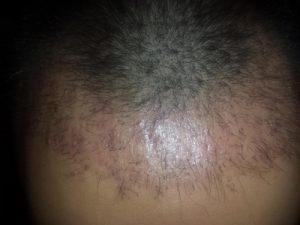 تجربة زراعة شعر في تركيا54