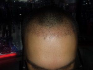 تجربة زراعة شعر في تركيا56