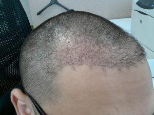 تجربة زراعة شعر في تركيا57