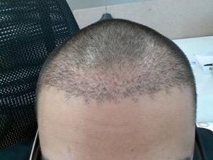 تجربة زراعة شعر في تركيا58