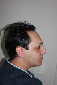 تجربة زراعة شعر في تركيا6