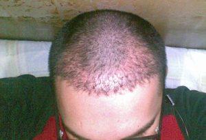 تجربة زراعة شعر في تركيا62