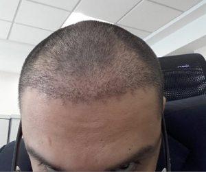 تجربة زراعة شعر في تركيا63