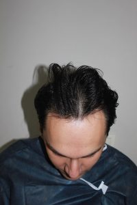 تجربة زراعة شعر في تركيا7