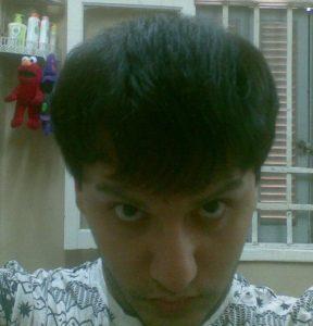 تجربة زراعة شعر في تركيا84