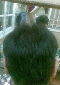تجربة زراعة شعر في تركيا86