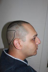 تجربة زراعة شعر في تركيا9